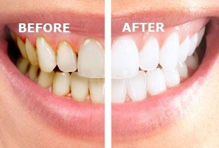 درمان ریشه دندان در تهران