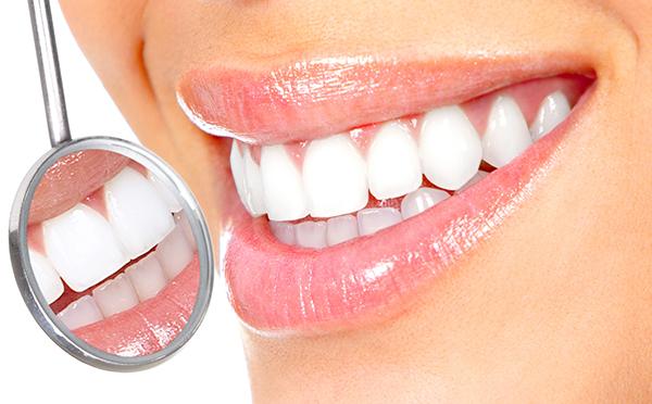 روکش دندان در تهران