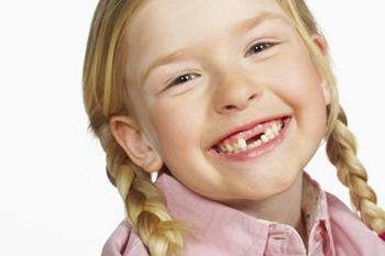 درمان شکستگی دندانِ کودکان
