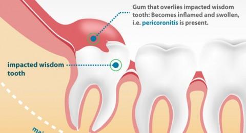 درمان دندان عقل در تهران