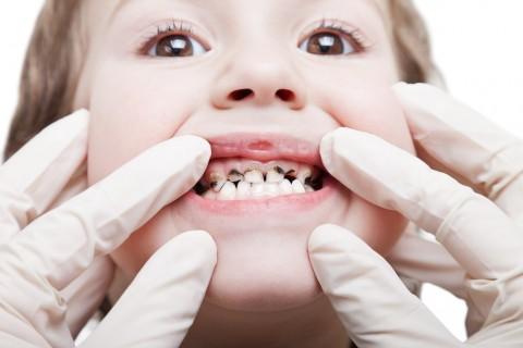 علل پوسیدگی دندان را بشناسیم