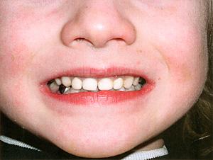 پوسيدگيهای دندانی زودرس دوران كودكی