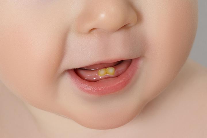 دندانپزشکی کودکان در تهران