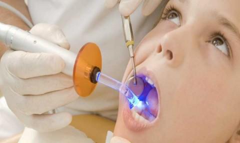 پرکردن دندان در قلهک