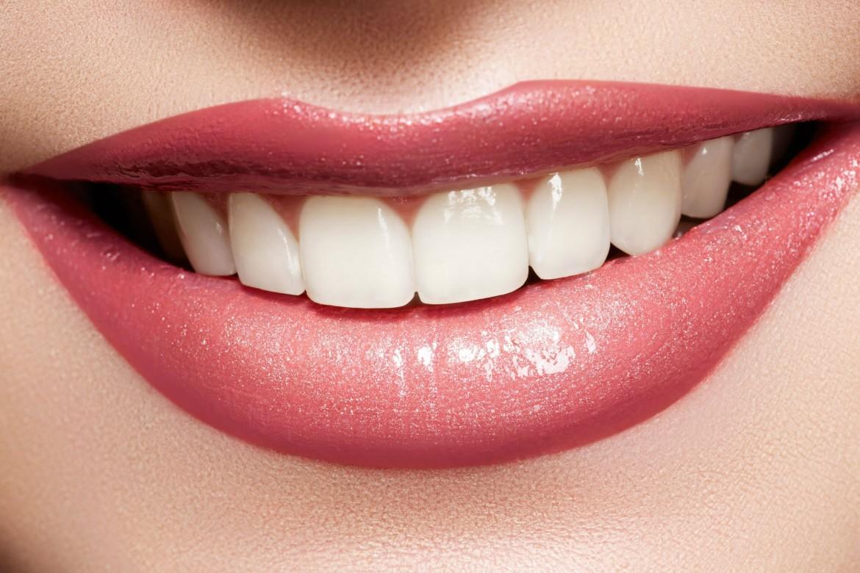 سفیدی دندان با روش زیر