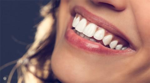 درمان فرسایش دندان در تهران
