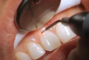 سلامت دندان و دندان قروچه (Bruxism)