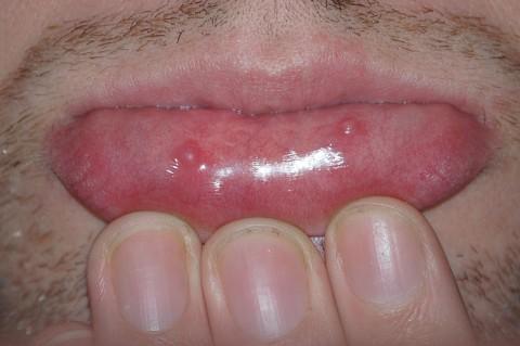 موکوسل : علایم، عوامل و درمان آن