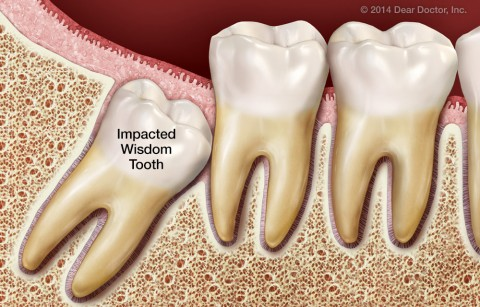ايا لازم است دندان عقلم را بكشم؟