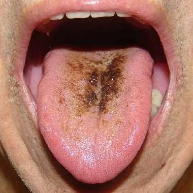 بیماری زبان مویی