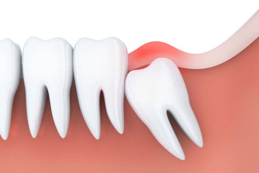 جراحی دندان عقل