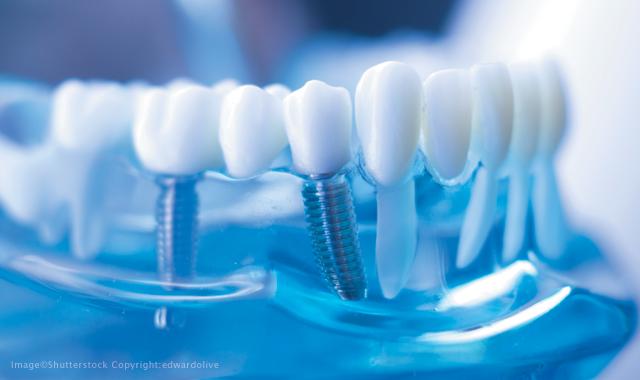 مشکلات دندان چیست