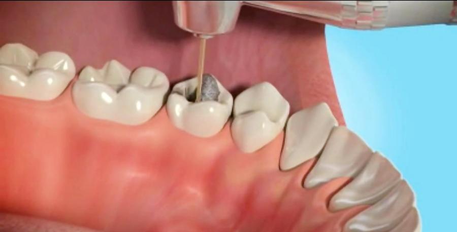 هزینه عصب کشی دندان