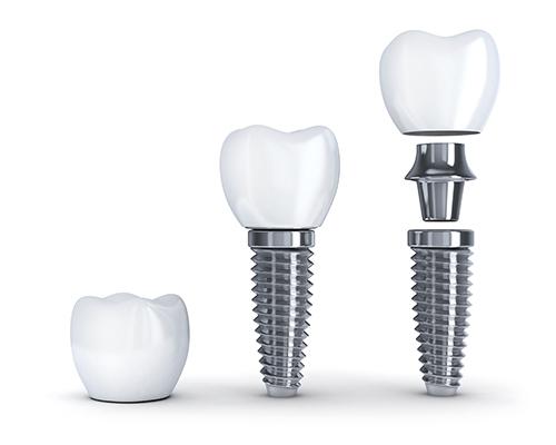 ایمپلنت دندان در یک جلسه