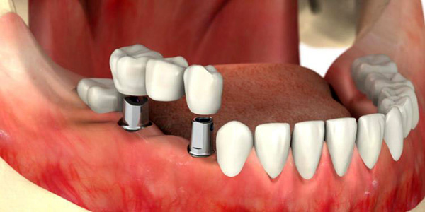 هزینه ایمپلنت دندان در سال جدید