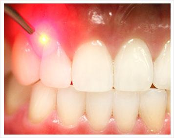 هزینه دندانپزشکی با لیزر