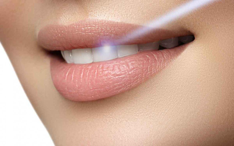 سفید-کردن-دندان-با-لیزر