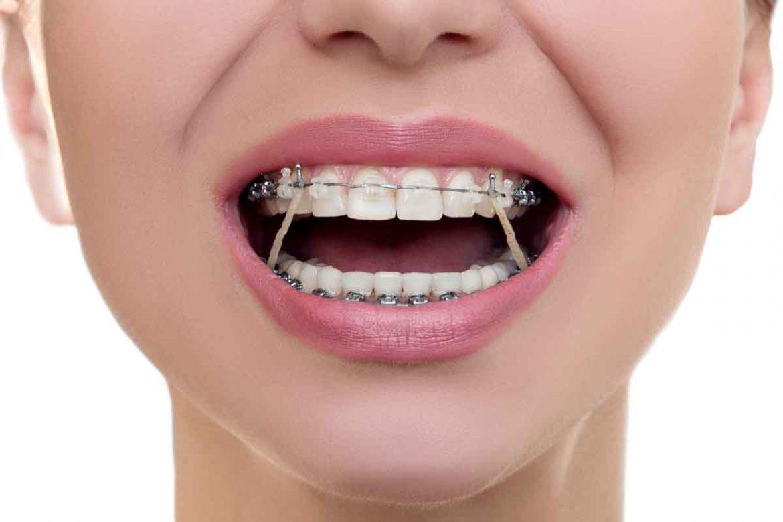نخ-دندان-ارتودنسی