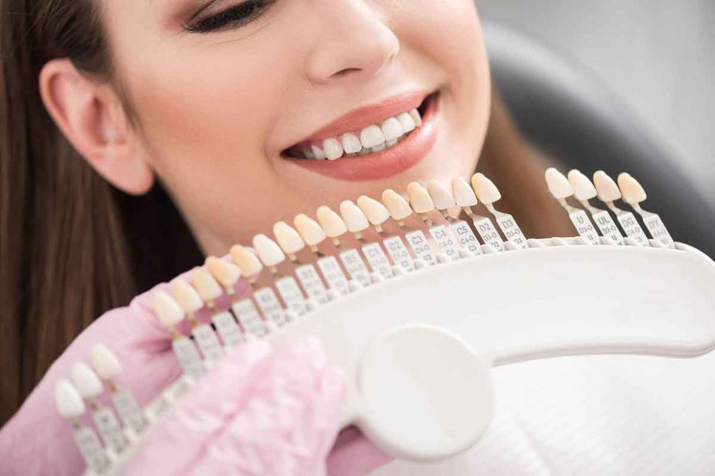هزینه-کامپوزیت-دندان