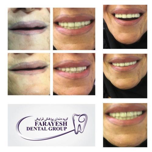 دندانپزشکی فرایش