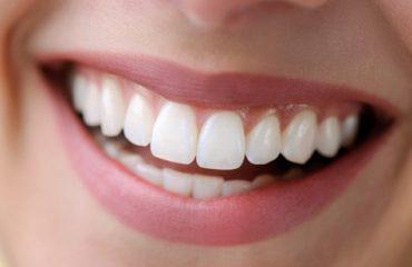 بهترین روکش دندان در فتحی شقاقی