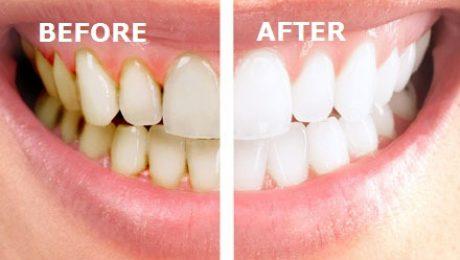 درمان ریشه دندان در قلهک