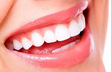 ترمیم دندان در شمیرانات
