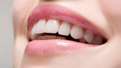 اصلاح طرح لبخند با کمترین قیمت