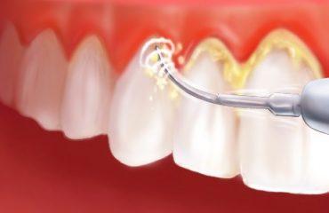 درمان زردی دندان در شهید بهشتی
