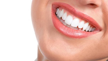 دندان خوب در دندانپزشکی نمونه تهران