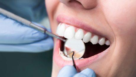 معاینه دندان در غرب تهران