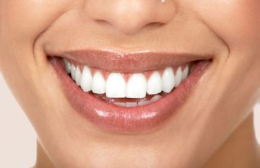 توصیه های دندانپزشکی براب پوسیدگی دندان