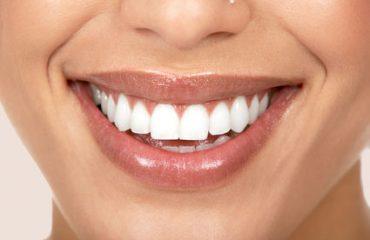 دندانپزشکی قلهک