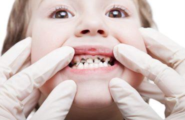 رفع پوسیدگی دندان با کمترین هزینه