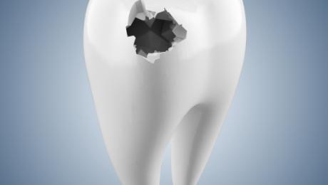 کاشت دندان با کمترین هزینه