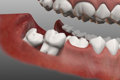 دندان عقل