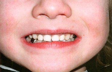 بهترین دندانپزشکان کودکان در غرب تهران