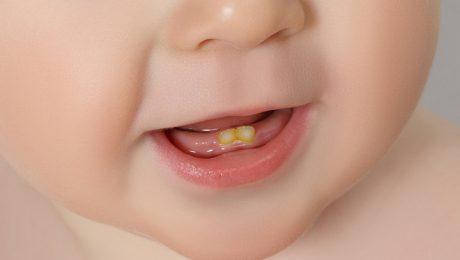 توصیه ی دندانپزشکان شمال تهران در رابطه با مصرف قطره آهن