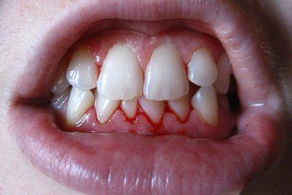 دندانپزشکان برتر جراحی تهران
