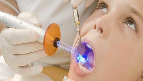 پر کردن دندان در سعادت آباد