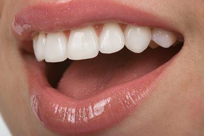 سلامت دندان با متخصصین در تهران