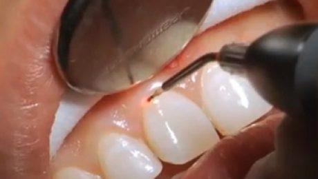 رفع دندان قروچه در شرق تهران