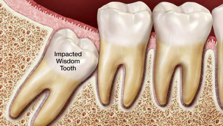 دندانپزشکان ماهر در رابطه با دندان عقل
