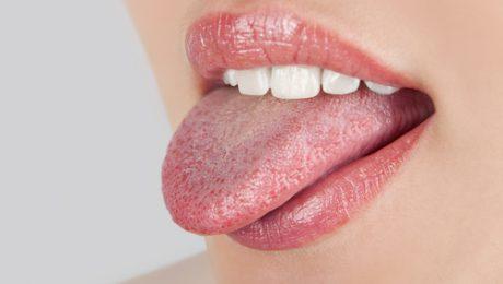 روش درمان بیماری زبان سیاه مودار