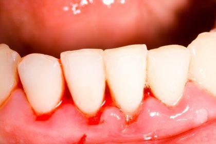 توصیه دندانپزشکان