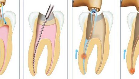 عصب کشی دندان با لیزر
