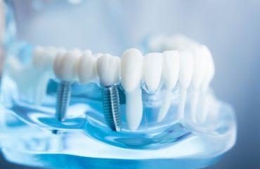 ایمپلنت دندان