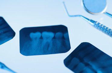کشیدن دندان عقل نهفته