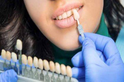 همه چیر در مورد لمینت دندان