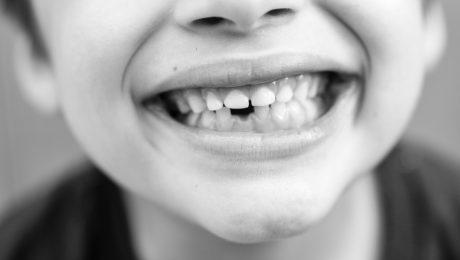 دندانپزشکی کودکان در ونک